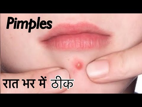 Pimples ka ilaaj 100%   How to Remove Acne overnight   Pimples treatment at home   JSuper Kaur