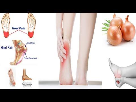 Heel Pain | Heel Pain Treatment | Home Remedy For Heel Pain | Ayrhee ke Dard Ka Ilaj
