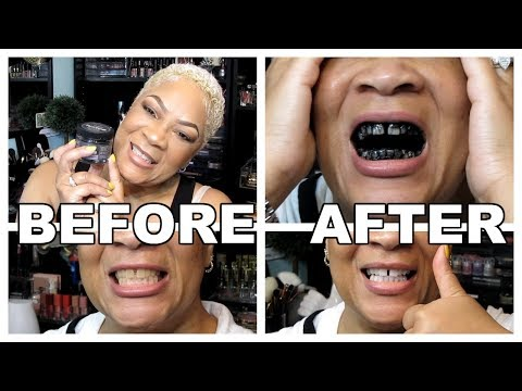 ACTIVATED CHARCOAL TEETH WHITENING | FAIL OR HOLY GRAIL? BEAUTY HACKS