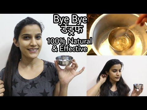 How To : Remove Dandruff Permanently   Result in 1st wash   100% Natural & Effective