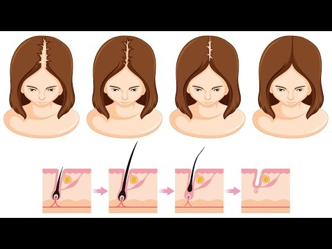 How to Grow Hair Faster, Thicker and Longer