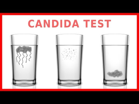 Do You Have Candida? Take The
