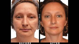 Dr. Rad's Brow and Forehead Lift Techniques   Plastic Surgery DC