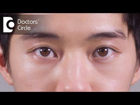 How to manage sudden swelling of the face especially near eye region? - Dr. Sunita Rana Agarwal