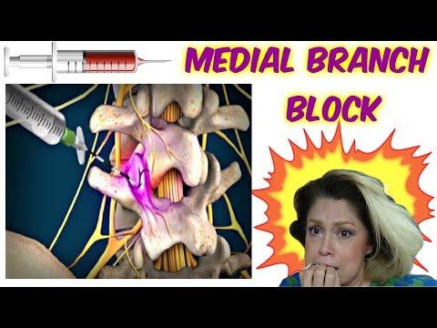 Medial branch block (en español)