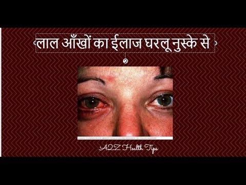 How to Get Rid of Red  Eye Naturally Home Remedy in hindi  | लाल आँखों का ईलाज घरलू नुस्के से