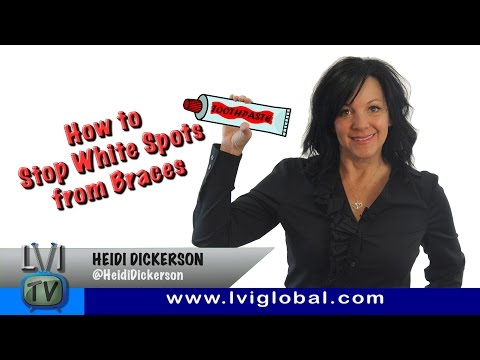 How to Stop White Spots from Braces - LVI TV: Episode 38