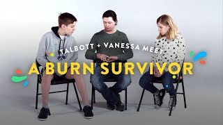 Kids Meet A Burn Survivor (Talbott & Vanessa) | Kids Meet | HiHo Kids