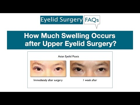 How Much Swelling Occurs after Upper Eyelid Surgery?