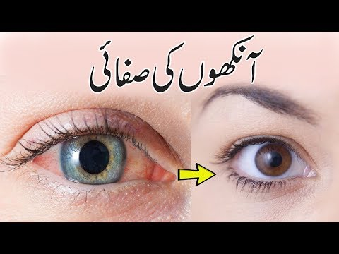 How To Get Clear And Brighten Eyes - Eyes Whitening Tips