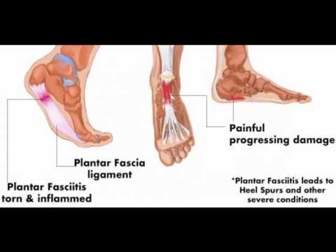 How to Get Rid of Heel Spurs with Doweling Medical and Treatments Treating Home Footwear