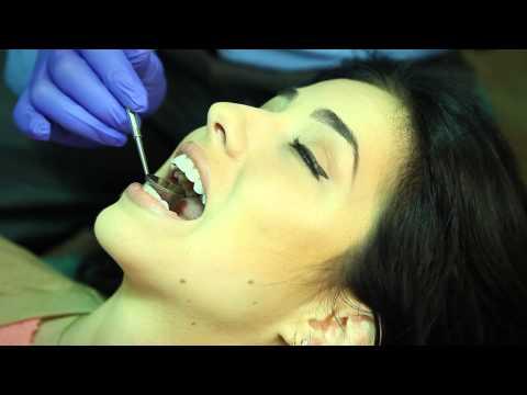 Incognito Lingual Braces | Orthodontist Pensacola FL