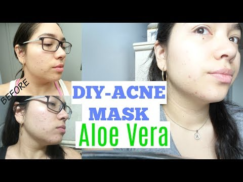 How to use Aloe Vera for Acne / my 1 week progress