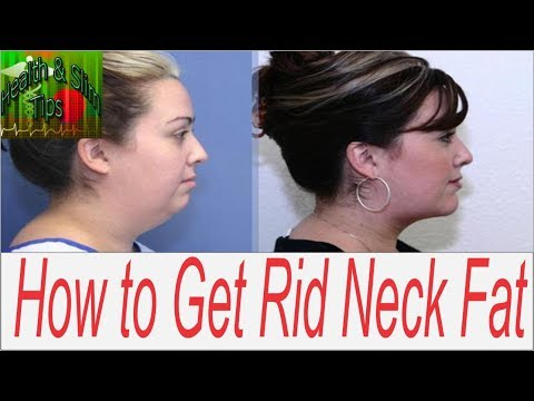 How to Get Rid of Face and Neck Fat Double Chin