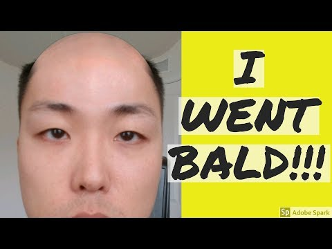 ALL MY HAIR IS GONE!! I WENT BALD!