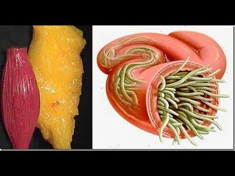 Remove All The FAT And PARASITES From Your Body With Only 2 Ingredients!