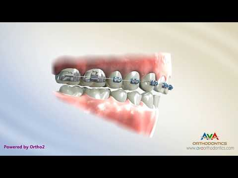 Deepbite Treatment by Stepped Arch Wire - Orthodontic Treatment