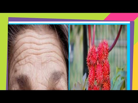 HOW TO GET RID OF FOREHEAD WRINKLES / LOOSE SKIN AND LAUGH LINES