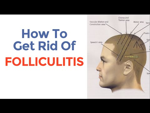 How To Cure Folliculitis And Decrease Excessive Hair Loss