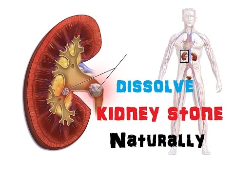 How to dissolve Kidney Stones Naturally?