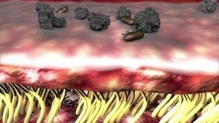 Au coeur des organes : La mucoviscidose