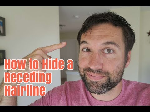 How to Hide a Receding Hairline without Being in Denial
