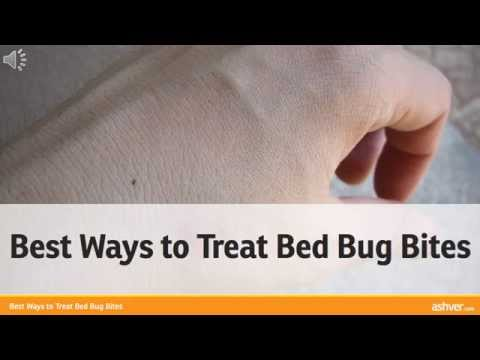 Best Ways to Treat Bed Bug Bites