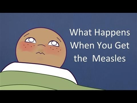 What Happens When You Get the Measles?