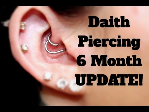 In Depth Daith Piercing Update-6 Months!