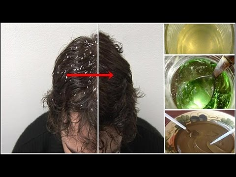 Rid of Dandruff | How to Get Rid of Dandruff at Home