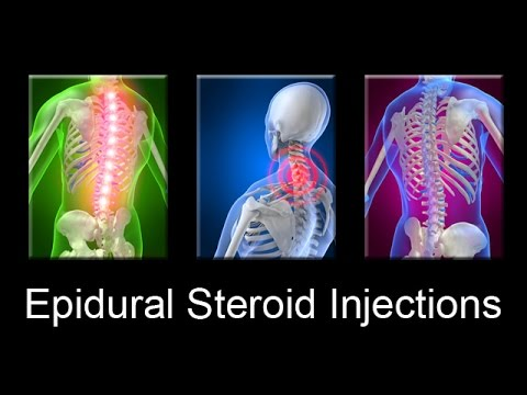 Epidural Steroid Injections Are Dangerous For Neck Back Pain Relief D