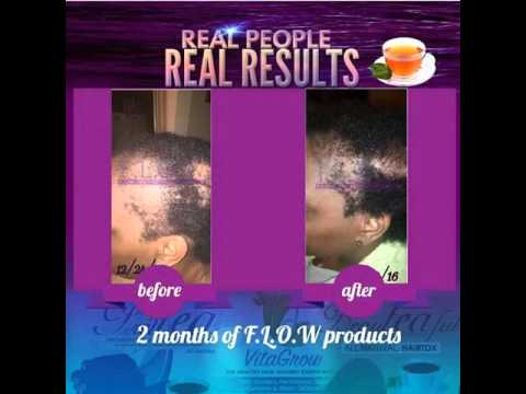 Grow Your Hair And Make Money Doing It With Flow Industry.