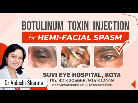 Botulinum Toxin Injection for Hemi-Facial Spasm by Dr Vidushi Sharma, SuVi Eye Hospital, Kota India