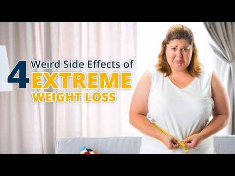 4 Weird Side Effects of Extreme Weight Loss