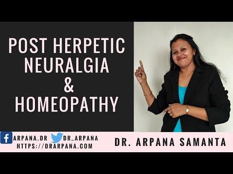 पोस्ट हरपेटिक  न्यूरलजिया के कारन और होमियोपैथी दवाई || POST HERPETIC NEURALGIA & Homeopathy