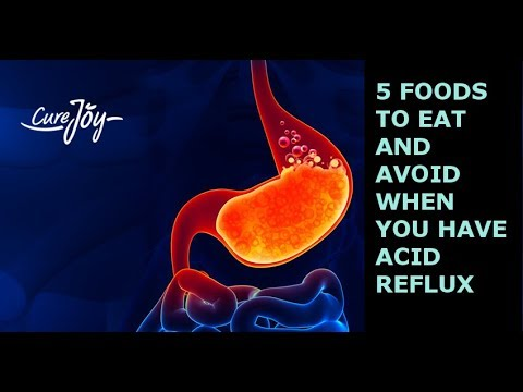5 Foods To Eat And Avoid When You Have Acid Reflux