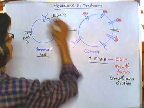 Cancer treatment using monoclonal antibody