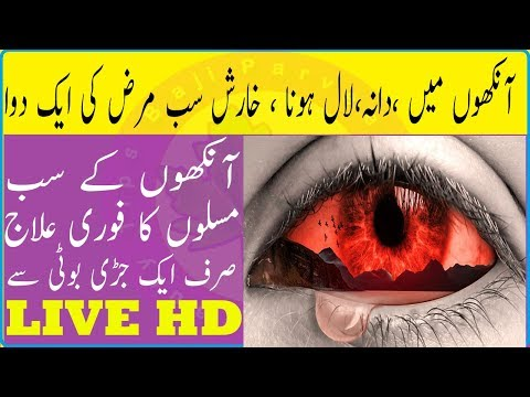Red Eyes Problem Solution - Eye Infection Eyes Redness In Eyes Home Remedies for Remove Eye Pain