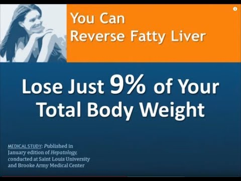 Fatty Liver Diet: Lose 9% of Your Weight to Reverse Fatty Liver