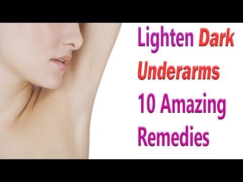 10 Amazing Remedies To Lighten Dark Underarms | How To Get Rid Of Dark Underarms