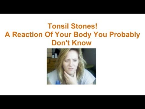 Tonsil Stones! A Reaction Of Your Body You Probably Don't Know