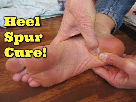 Natural Heel Spur Cure!  Heel Spur Remedy!  Sore Foot Pain Relief!