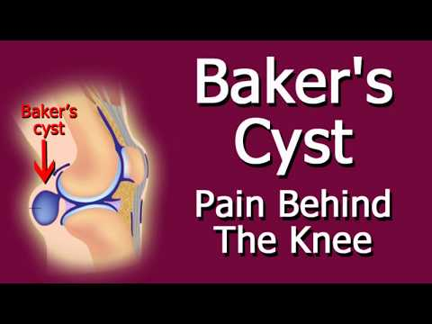 Baker's Cyst Pain Behind The Knee