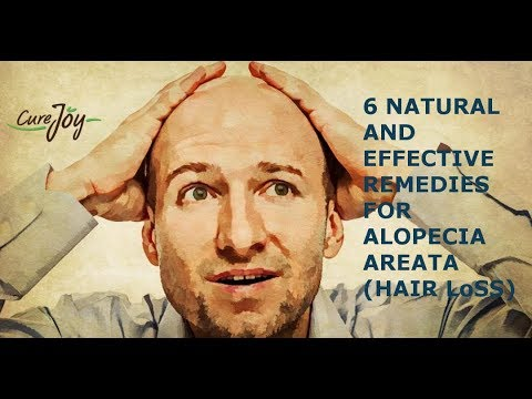 6 Natural And Effective Remedies For Alopecia Areata (Hair Loss)