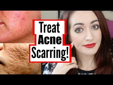 How To Treat Mild, Moderate And Severe Acne Scarring! DIY, At Home & More!