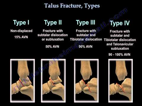 Talus Fracture Types - Everything You Need To Know - Dr. Nabil Ebraheim