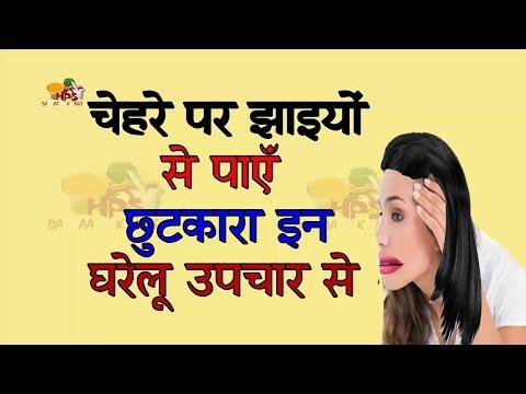 चेहरे की  झाइआं  के लिए घरेलू उपचार  Home Remedies For Dark Spot dark spot on face in hindi
