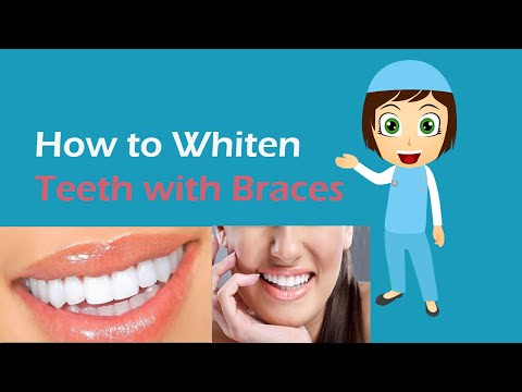 How to Whiten Teeth With Braces | Whiten Teeth With Braces at Home