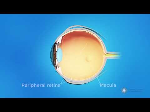 What is retinopathy of prematurity (ROP)?