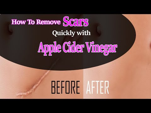 How To Remove Scars Quickly with Apple Cider Vinegar